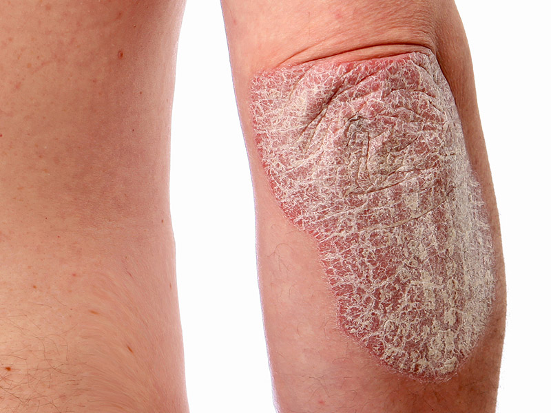 13 Organic skin care tips to help with psoriasis